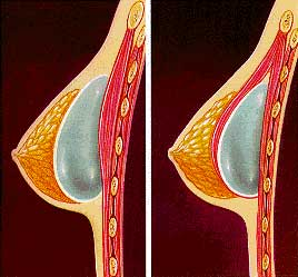 Diagram of implant in breast